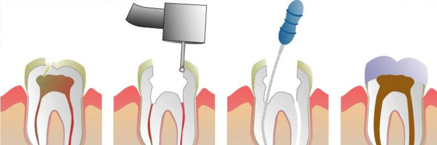 root canal in new westminster