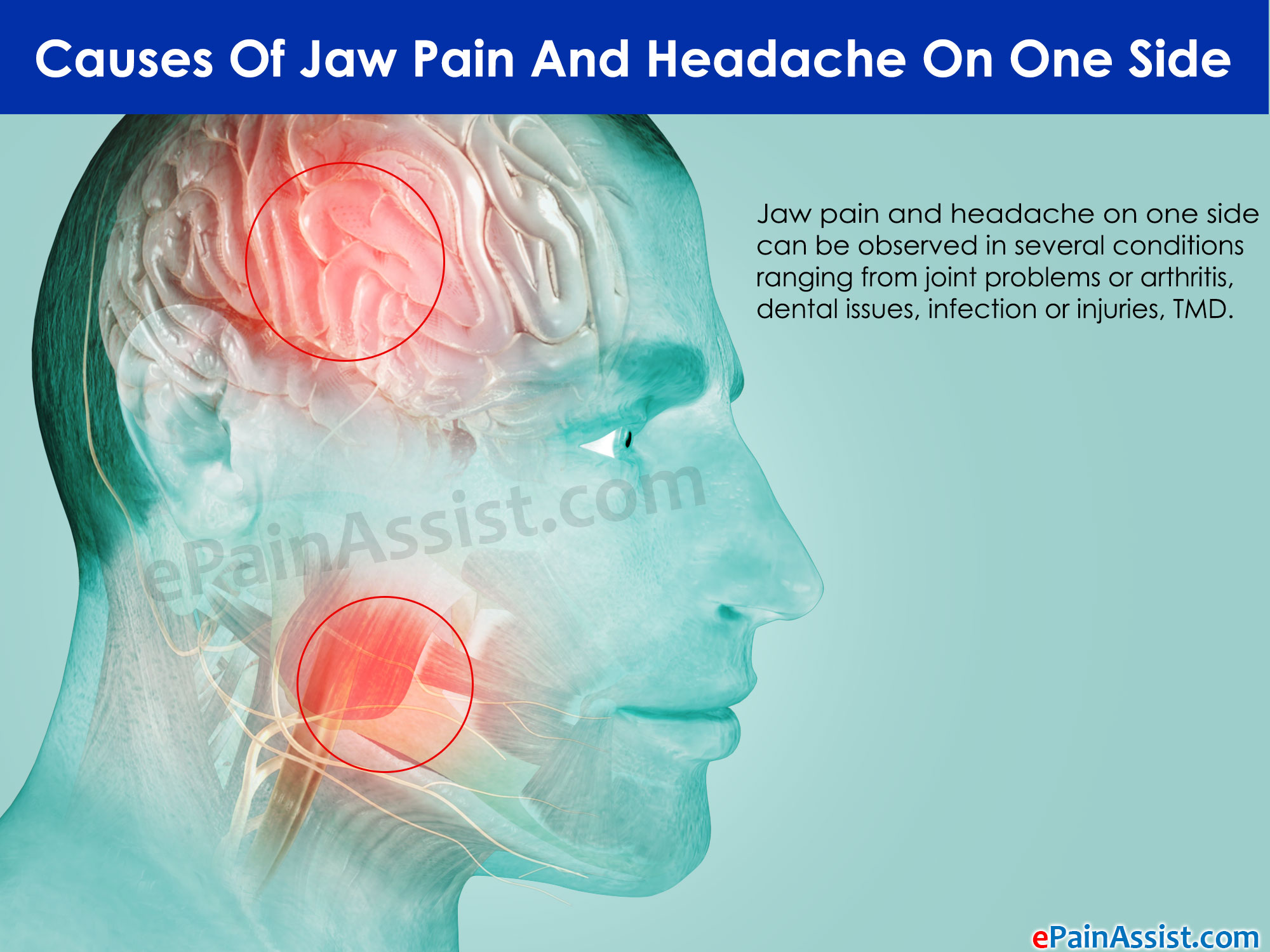 could your dentist help cure your headaches?   new westminster dentist